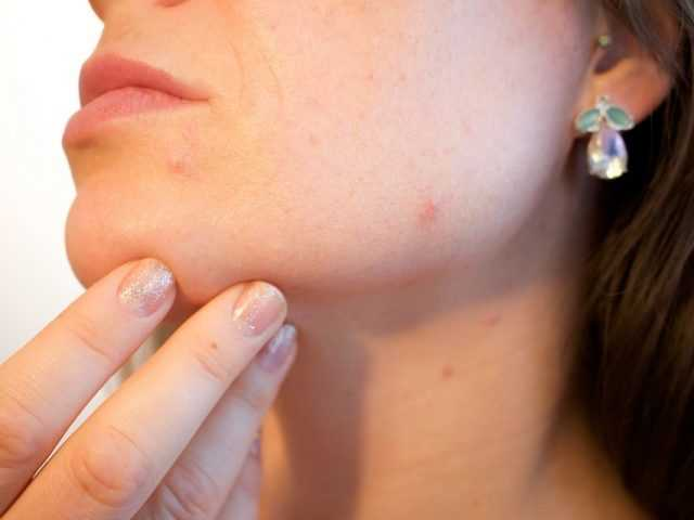 The Best Natural Remedies For Acne